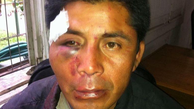 Formalizan a carabinero en Temuco por golpiza a comunero mapuche en 2014